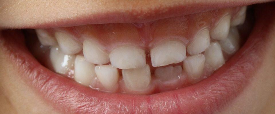 Zajímavosti o zubech